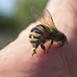 how to treat a bee sting | Any Pest