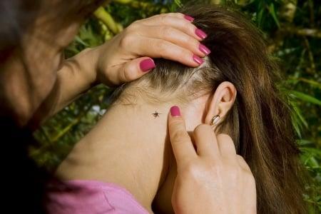 Checking for Ticks | Any Pest Inc.