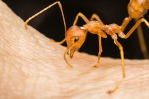 Fire Ant Bite | Any Pest Inc